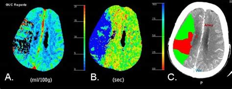 HEALTH FROM TRUSTED SOURCES: Ischemic Stroke